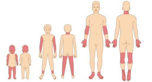 Značilna mesta za atopijskim dermatitis pri dojenčku, otroku in odraslem.